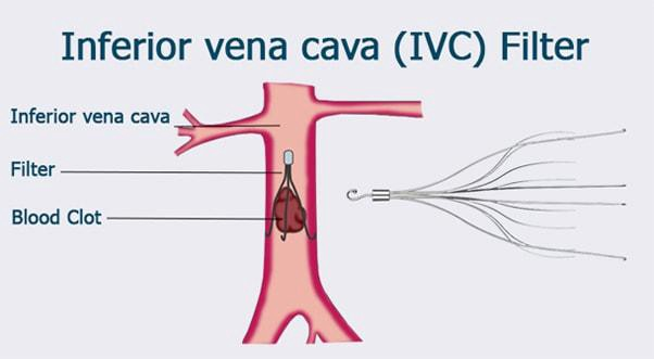 Optease ivc filter instructions for use